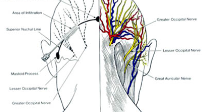 Occipital Nerve dallas 398x220 - Procedures and Treatments