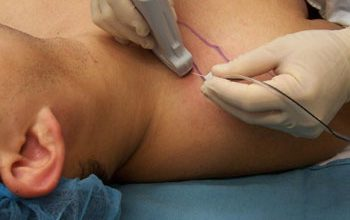 Peripheral Nerve Blocks 350x220 - Procedures and Treatments