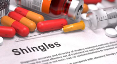 Shingles Treatment Dallas