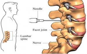 injections for back pain 300x189 - Dallas Back Pain Talk: Knowing Your Back Pain