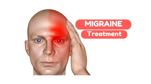 "Migraine pegasus7 - Migraines: More Than ""Just A Headache"""