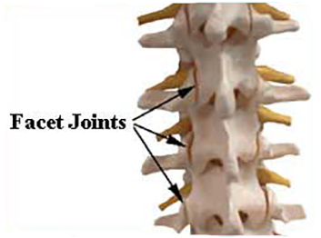 Facet injections 1 - Facet Joint Injections