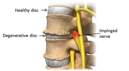 degenerative disc disease dallas