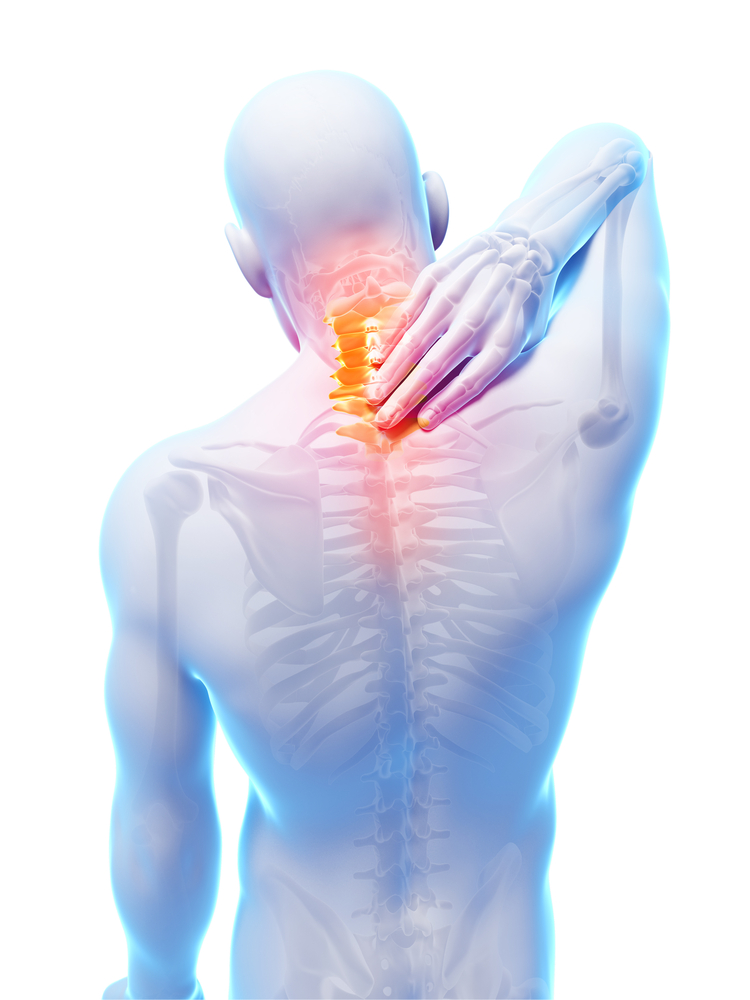 Myofascial Pain Syndrome - Myofascial Pain Syndrome