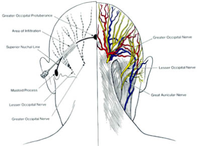 Occipital Nerve dallas - Occipital Nerve Blocks