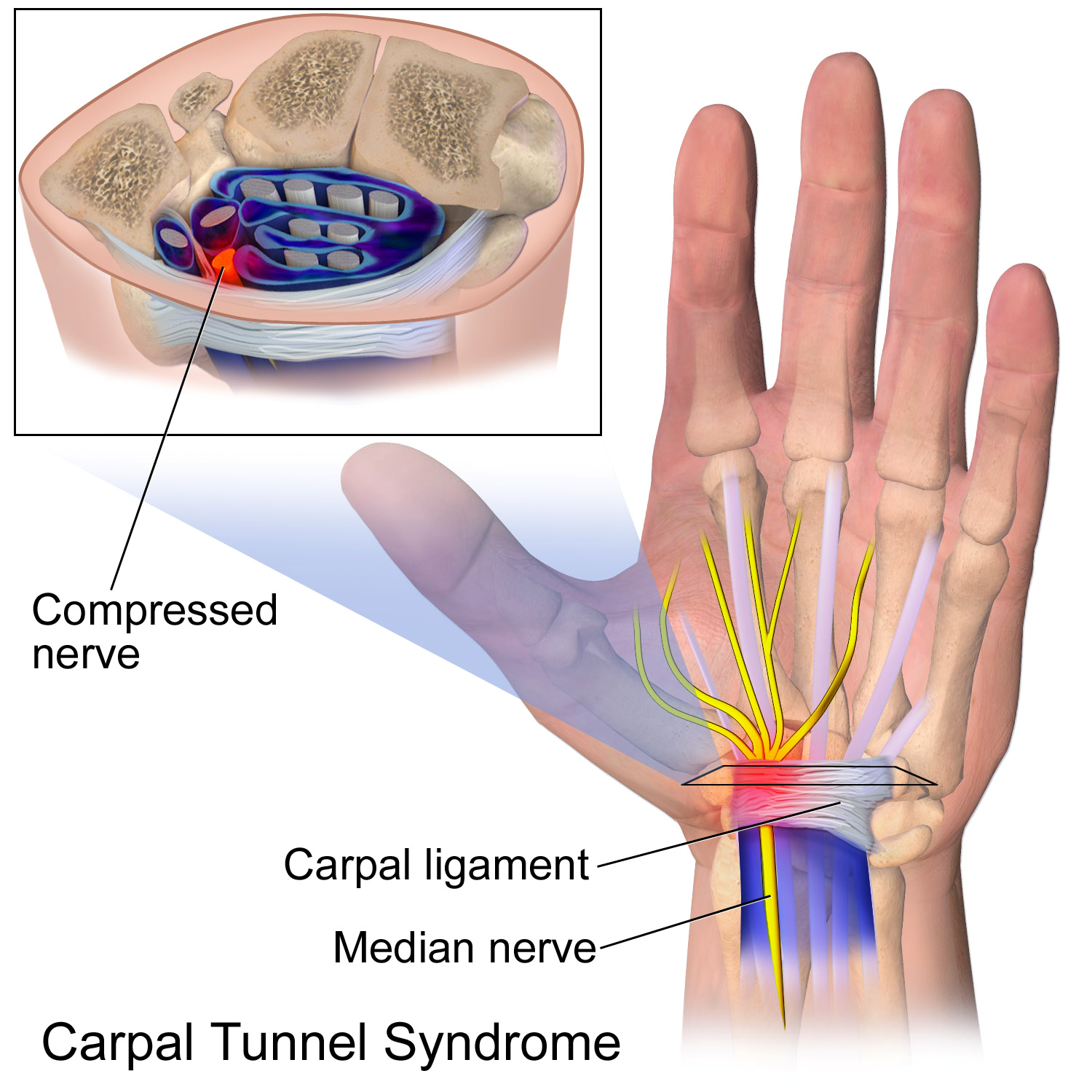 carpal tunnel dallas - Carpal Tunnel Syndrome