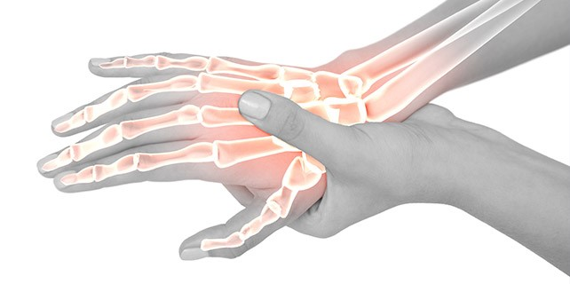 carpal tunnel pain dallas