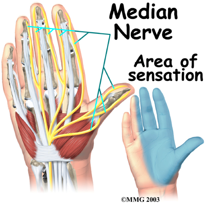 carpal tunnel syndrome dallas