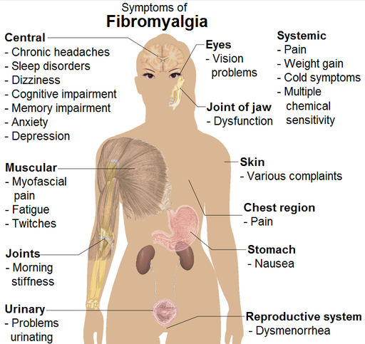 fibromyalgia symptoms dallas - Fibromyalgia