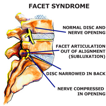 Facet Syndrome dallas - Facet Syndrome