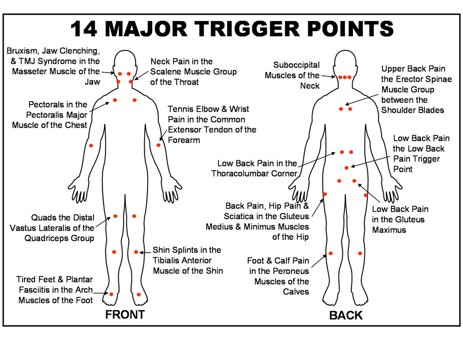 Trigger Point Injections for pain dallas