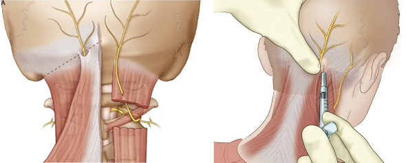 occipital nerve block - Occipital Nerve Blocks